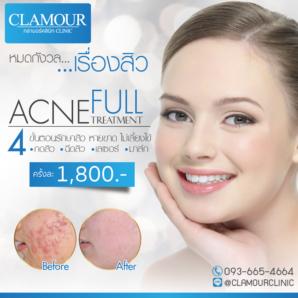 Acne full Treatment